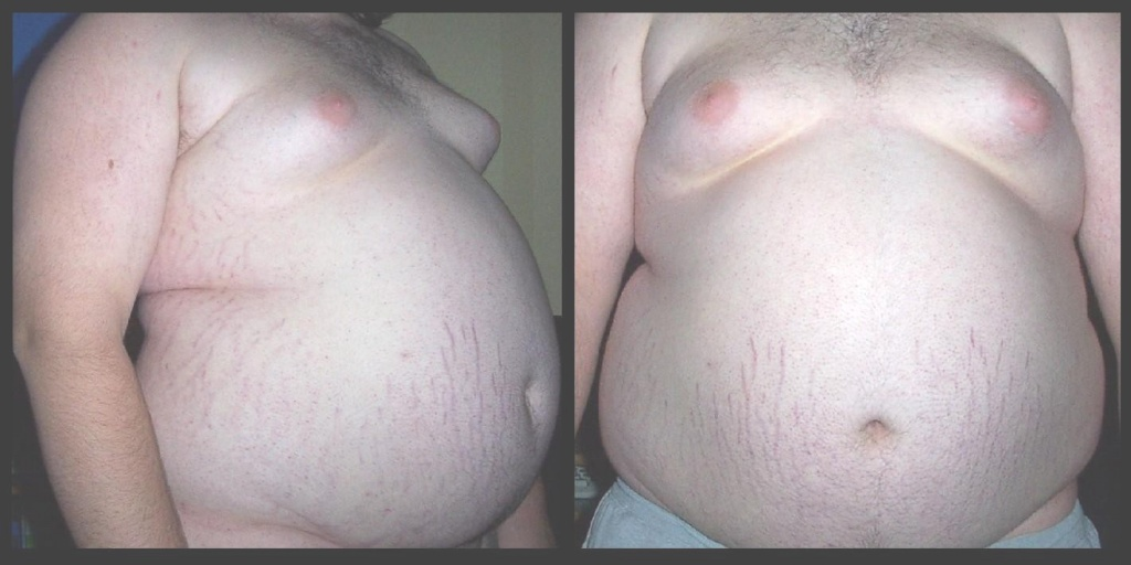 ожирение.JPG