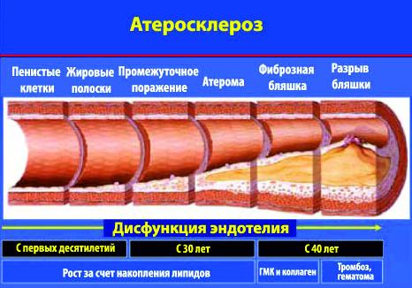 атеросклероз3.jpg